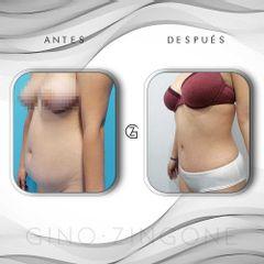 Abdominoplastia - Dr. Gino Zingone