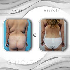 Liposucción - Dr. Gino Zingone