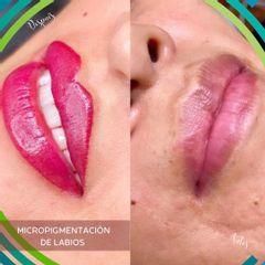 Micropigmentación - Dermatodesign