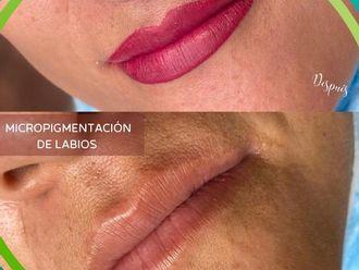 Micropigmentación-786095