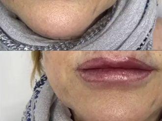 Aumento labios-789224