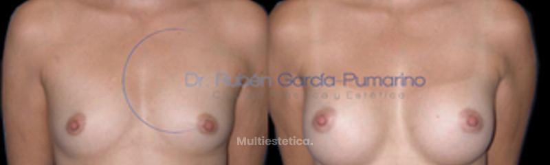 Aumento de Senos 3 - Dr. Rubén García-Pumarino
