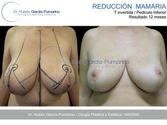 Reducción senos - 582233