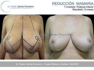 Reducción de Senos 3 - Dr. Rubén García-Pumarino