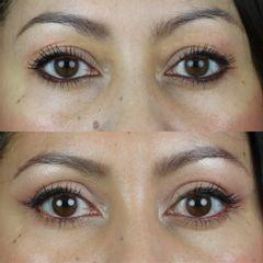 Antes y después Blefaroplastia superior. Resultado sutil y natural a los 5 días.