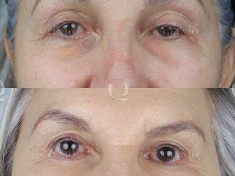 Cirugía estética-661850