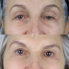 Antes y después Elevación mediante láser y mínima incisión. Resultado a los 7 días.