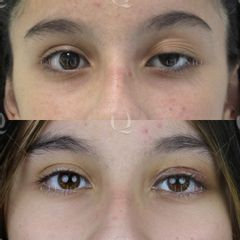 Antes y después Blefaroplastia láser de párpado superior izquierdo caído. Resultado a los 7 días