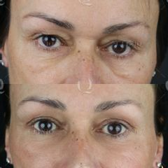 Antes y después Párpados caídos. Blefaroplastia láser co2