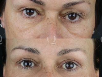Cirugía estética-661852
