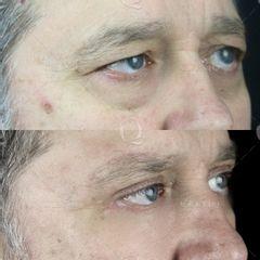 Antes y después Blefaroplastia láser para eliminar bolsas, ojeras y párpados caídos.