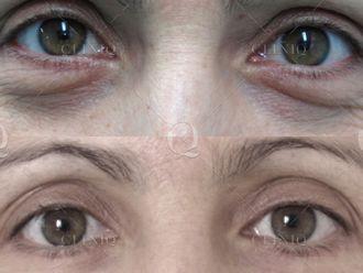 Medicina estética-661856