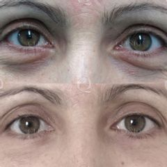 Antes y después Suavizado de las arrugas alrededor de los párpados inferiores  con láser CO2