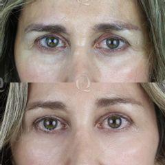 Antes y después Elevación de cejas con ácido hialurónico