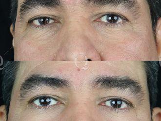 Blefaroplastia sin cirugía-661859