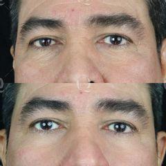 Antes y después Blefaroplastia sin cirugía Accutite (Elevación del párpado caído).