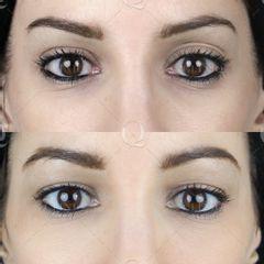 Antes y después Ácido hialurónico en el párpado superior izquierdo (para eliminar el doble pliegue)