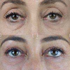 Antes y después Rejuvenecimiento de la mirada con Ácido hialurónico