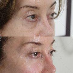 Antes y después Mejora de bolsas y ojeras mediante ácido hialurónico en el párpado inferior.