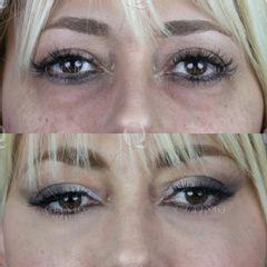 Antes y después Eliminación de bolsas y ojeras mediante ácido hialurónico en el párpado inferior