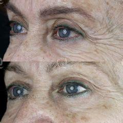Antes y después Elevación cejas sin cirugía mediante microinyecciones de ácido hialurónico.