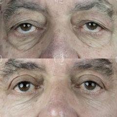 Antes y después Accutite y Blefaroplastia láser de párpados caídos