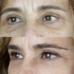 Antes y después Radiofrecuencia Morpheus para cicatrices palpebrales inferiores