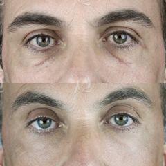 Antes y después corrección cicatricies