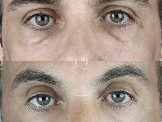 Corrección cicatrices-661873