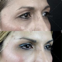 Antes y después Elevación cejas con cirugía y blefaroplastia laser superior de párpados caídos.