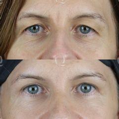 Antes y después Blefaroplastia superior láser para elevar párpados superiores caídos.