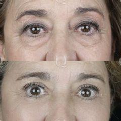 Antes y después Blefaroplastia láser para mejorar bolsas, ojeras y párpados caídos.