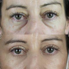 Antes y después Blefaroplastia láser para merjorar bolsas,ojeras y párpados caídos.