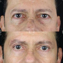 Antes y después Blefaroplastia láser para mejorar bolsas,ojeras y párpados caídos.