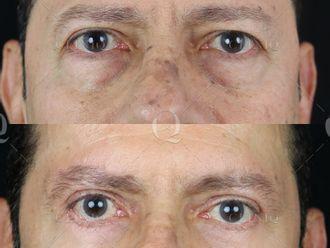 Cirugía estética-661886