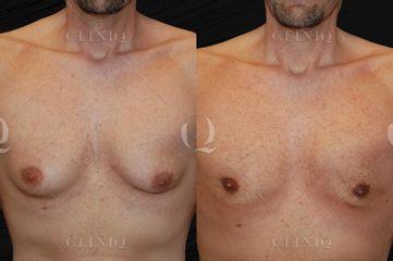 Antes y después Lipovaser en paciente masculino con ginecomastia. Reducción sin cicatrices visibles.