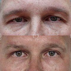 Antes y después Blefaroplastia láser para elevar párpados caídos