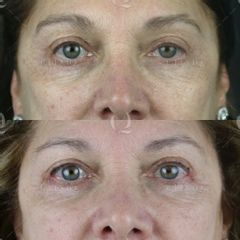 Antes y después Blefaroplastia láser