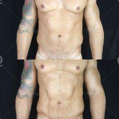 Antes y después Lipovaser combinado con Bodytite