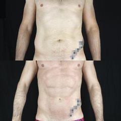 Antes y después Lipo Vaser con  Renuvion J-Plasma. combinado con Bodytite.