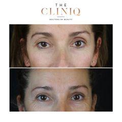 Blefaroplastia - The CLINIQ