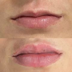 Aumento de labios - Horizon Clinics
