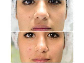 Aumento labios - 630043