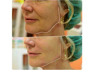 Rejuvenecimiento facial-630045