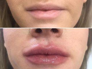 Aumento hidratación de labios con ácido hialurónico