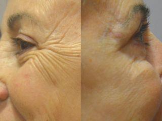 Antesy después Botox