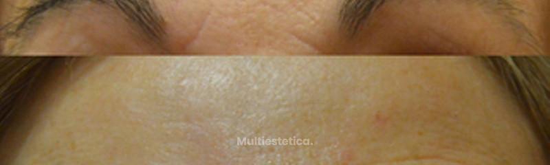 Botox - Antes y Después