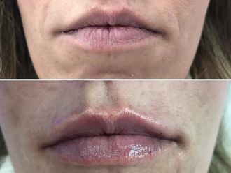 Aumento labios-632754