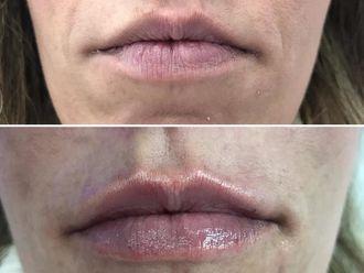 Aumento labios - 632754