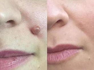Dermatología-635161